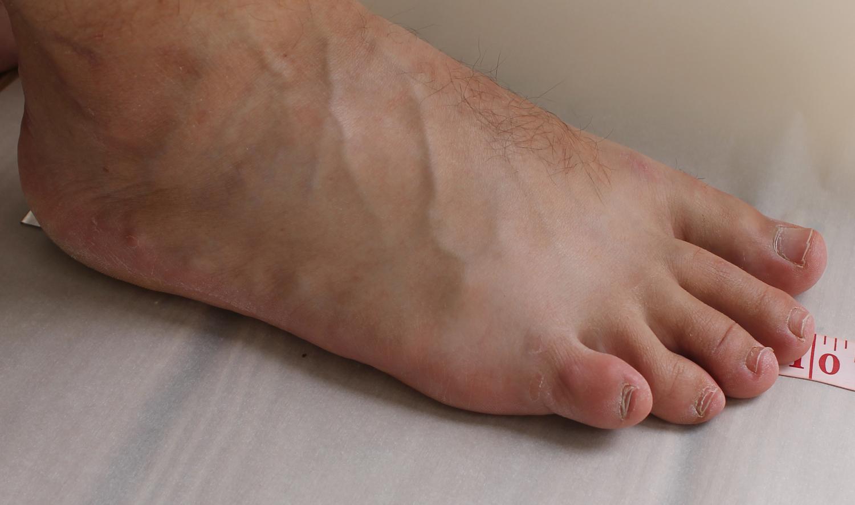 Measuring foot length